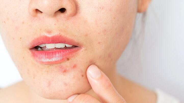 Quelles sont les causes de l'acné?